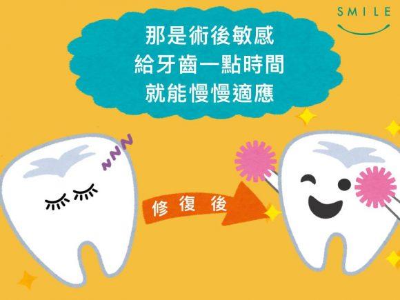 蒔美牙齒保健常識補完牙為什麼會牙齒痠痛呢-2-580x435