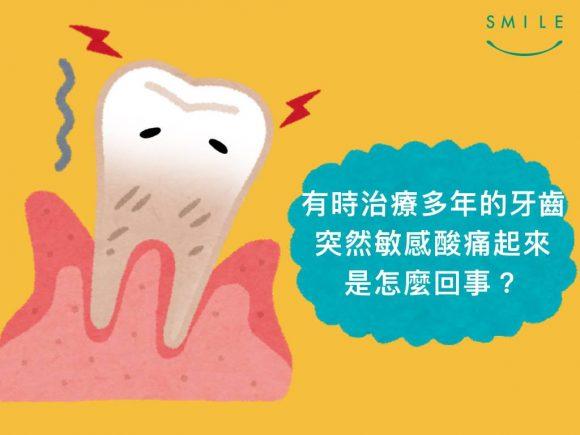 蒔美牙齒保健常識補完牙為什麼會牙齒痠痛呢-3-580x435