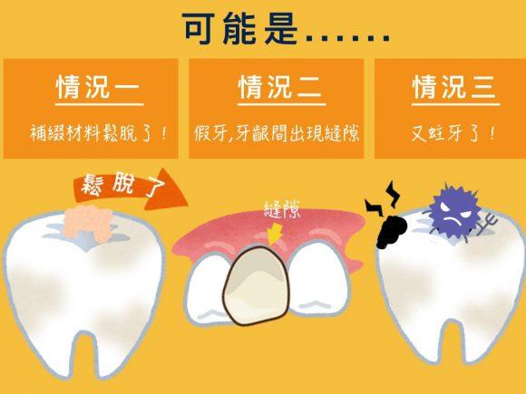 蒔美牙齒保健常識補完牙為什麼會牙齒痠痛呢-4-580x435