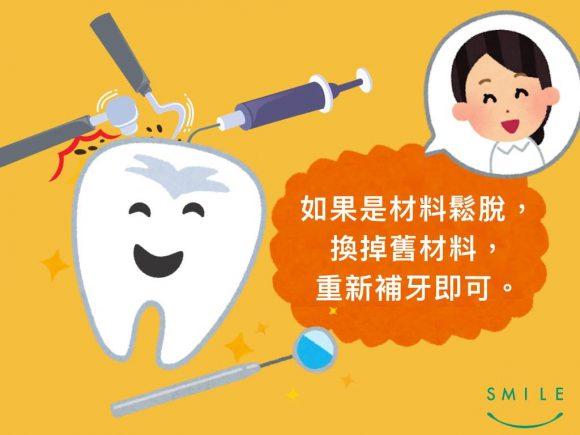 蒔美牙齒保健常識補完牙為什麼會牙齒痠痛呢-5-580x435