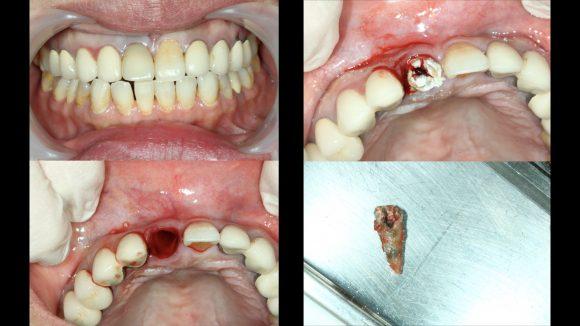 盧奎聿醫師-前牙斷裂即拔即植案例-照片1-580x326