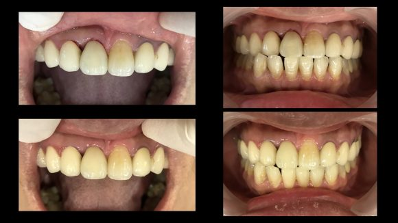 盧奎聿醫師-前牙斷裂即拔即植案例-照片6-580x326