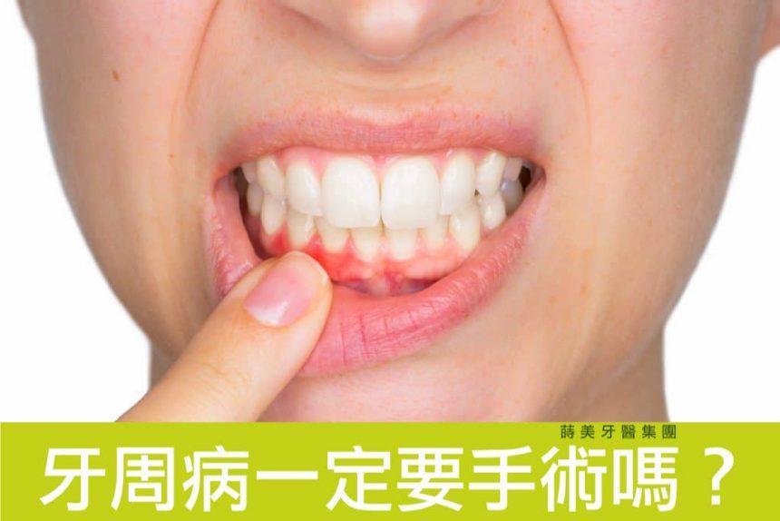 牙周病P1拷貝-860x574