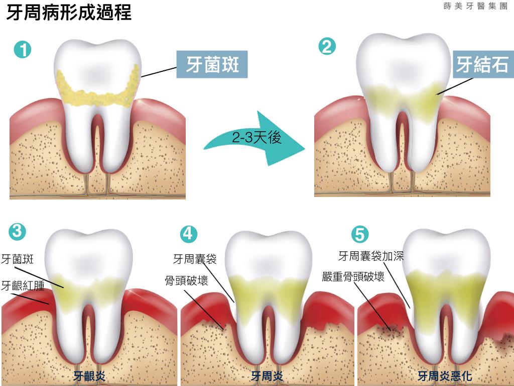 蒔美醫師專欄牙周病一定要手術嗎