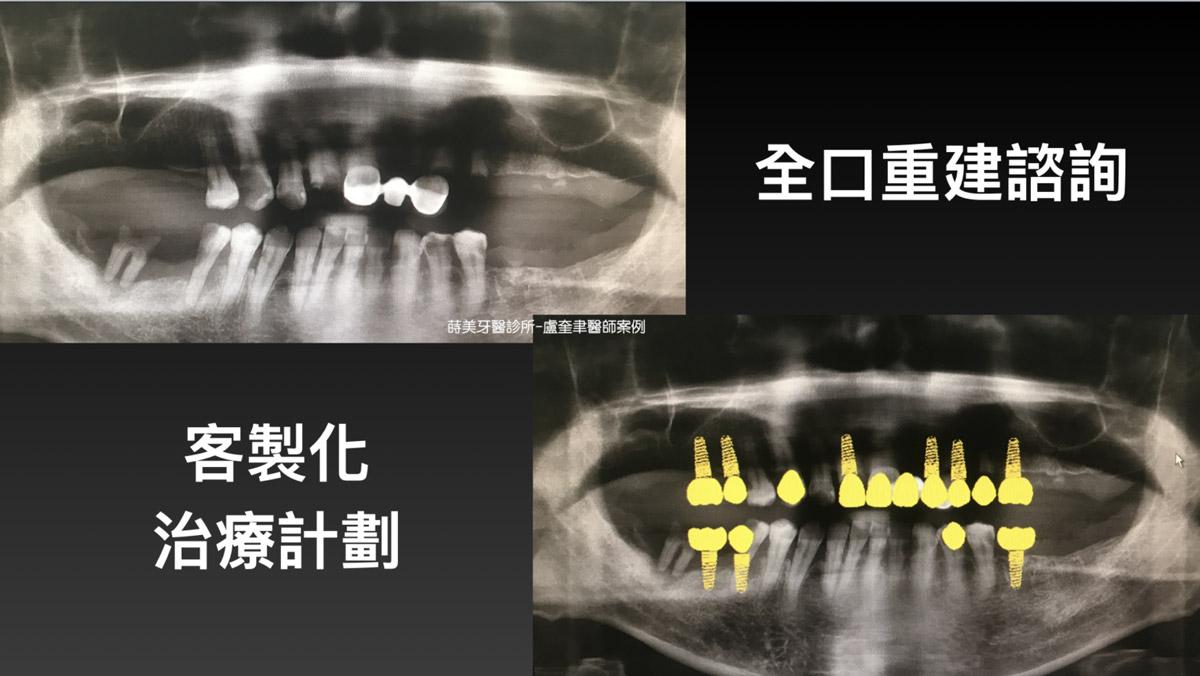蒔美案例分享全口重建-盧奎聿醫師案例01-1536x865