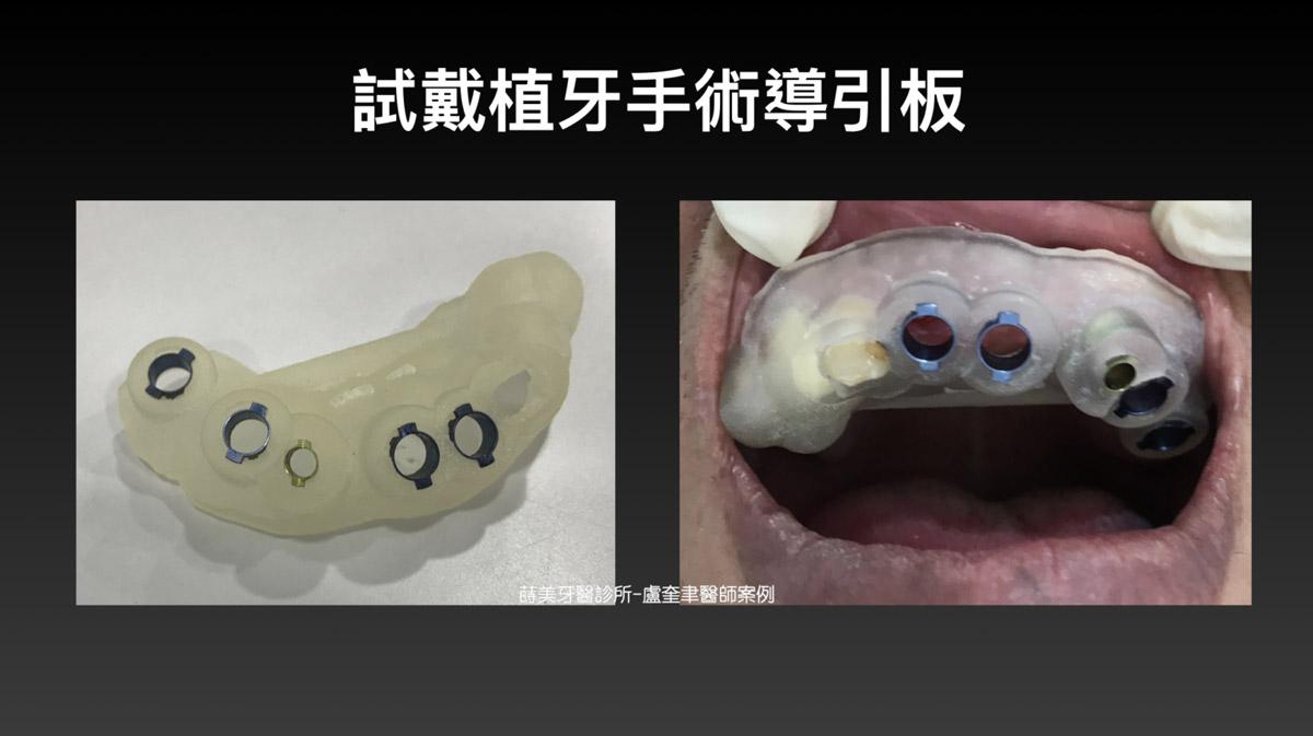 蒔美案例分享全口重建-盧奎聿醫師案例05-1536x861