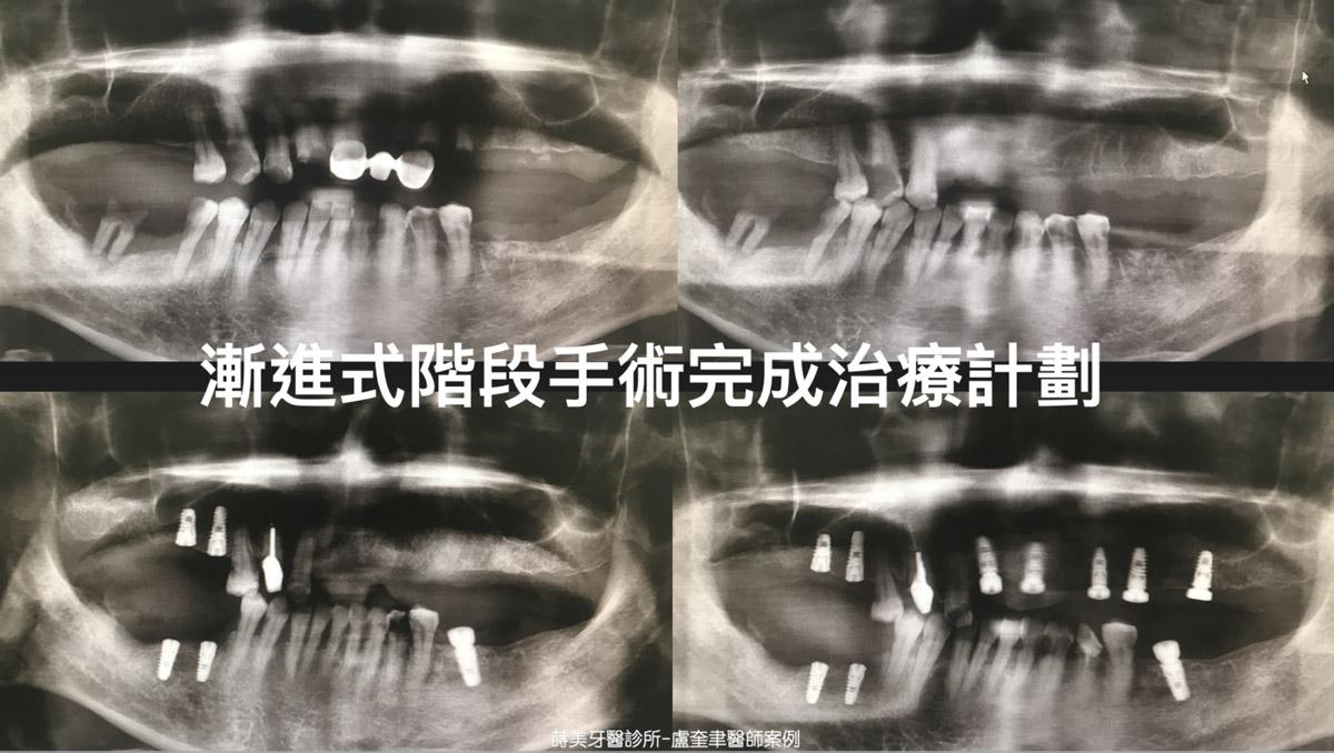 蒔美案例分享全口重建-盧奎聿醫師案例09-1536x868