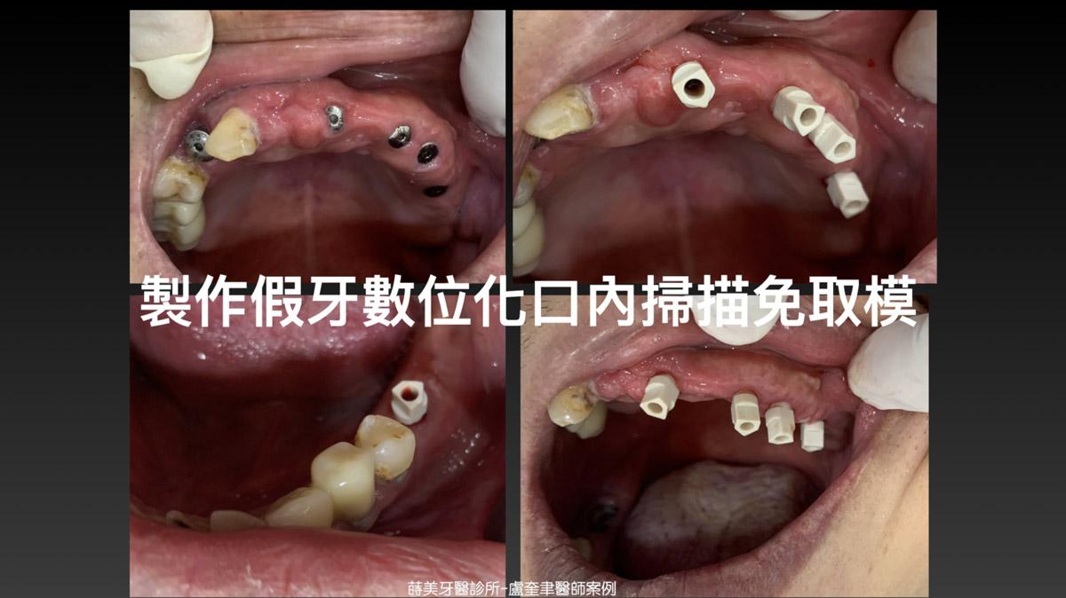 蒔美案例分享全口重建-盧奎聿醫師案例10-1536x863