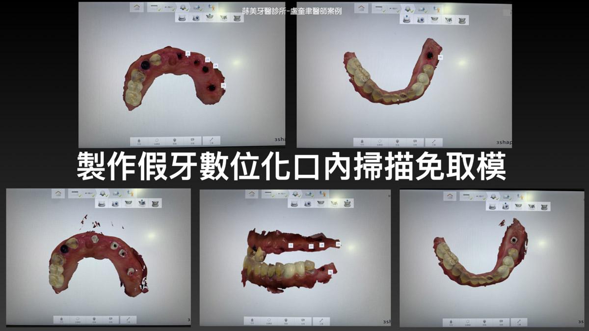 蒔美案例分享全口重建-盧奎聿醫師案例11-1536x863
