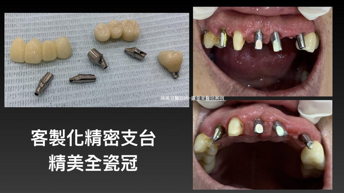 蒔美案例分享全口重建-盧奎聿醫師案例12-1536x862