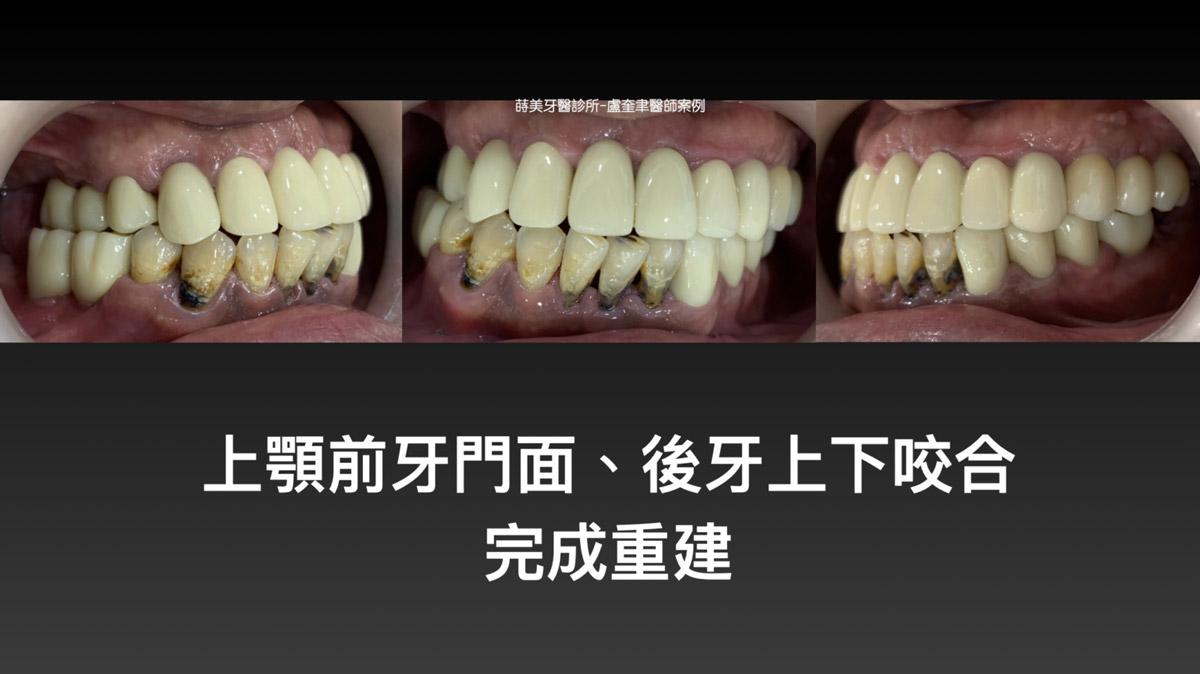 蒔美案例分享全口重建-盧奎聿醫師案例13-1536x863