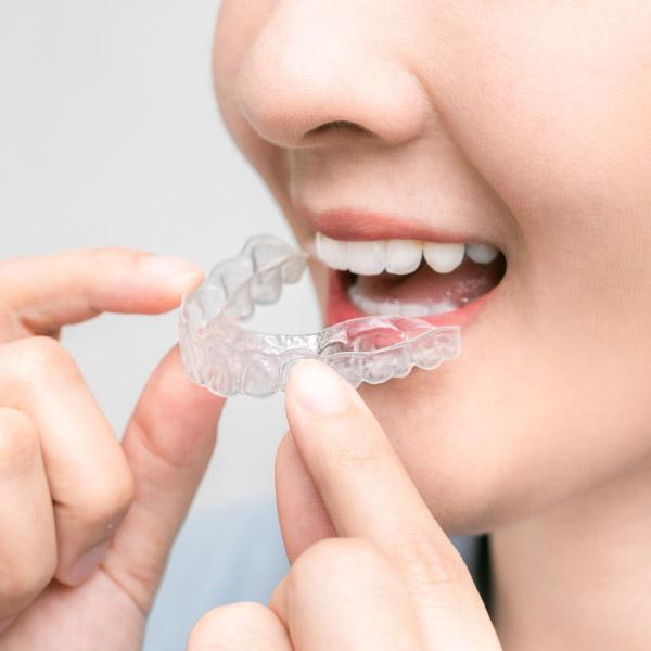 隱形牙套怎麼選