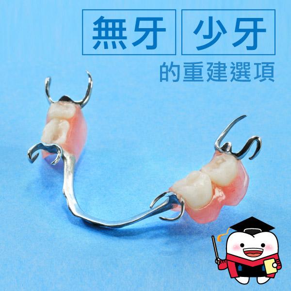 除了活動假牙難道沒別的選擇