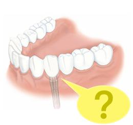 什麼-植牙竟然會失敗-蒔美牙醫-林涵威醫師專欄