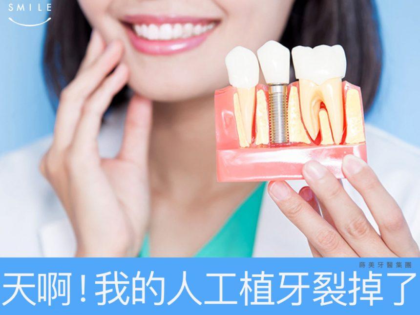 蒔美專欄-我的人工植牙裂掉了-01-860x645