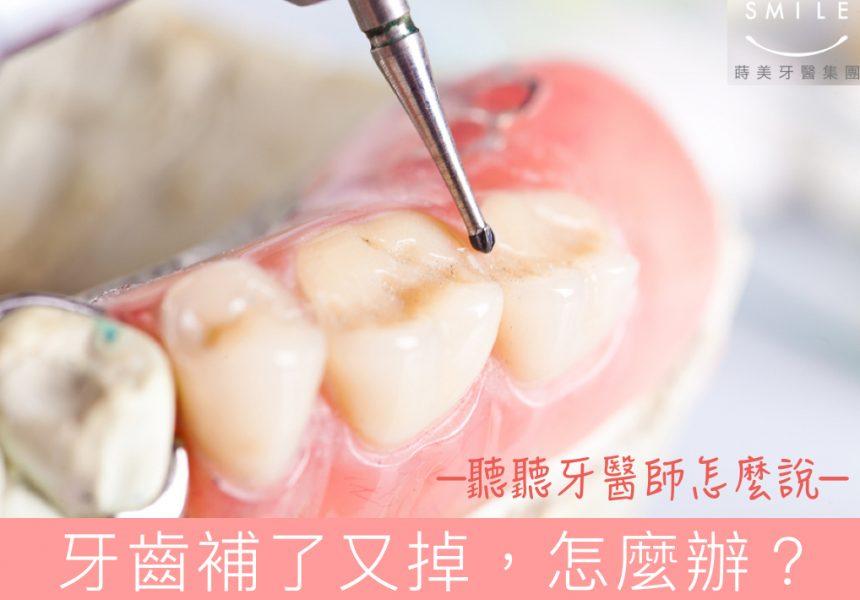 蒔美牙醫專欄牙齒補了又掉怎麼辦-cover-860x600