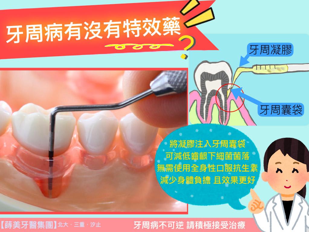 蒔美牙醫衛教牙周病有沒有特效藥?