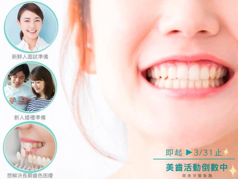 蒔美牙醫-美齒活動倒數中-768x576