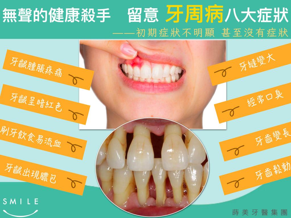 蒔美牙齒保健常識留意牙周病的八大症狀