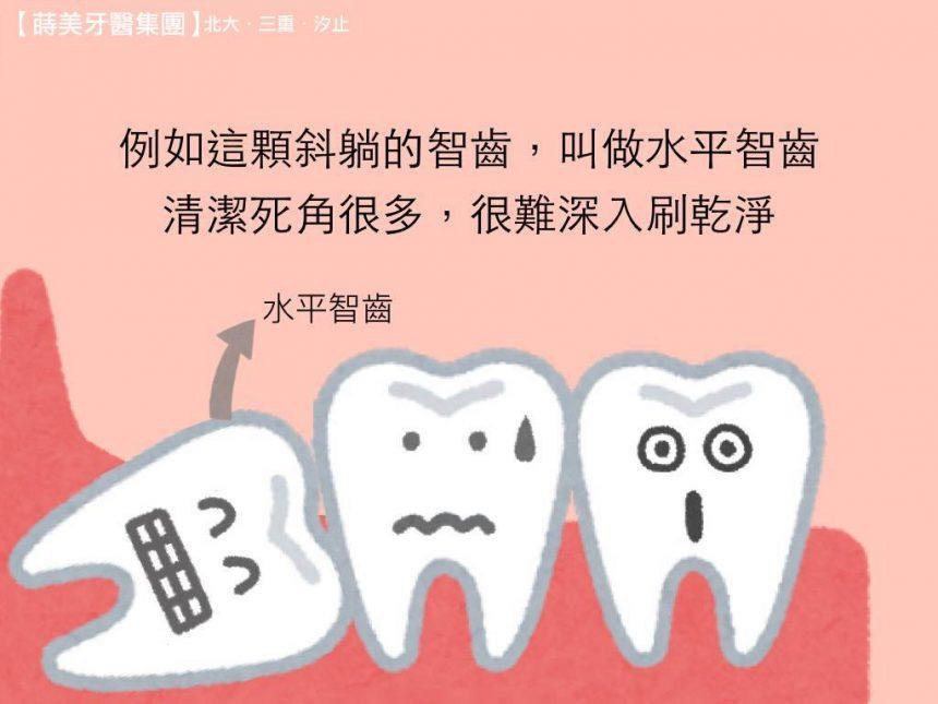 蒔美牙齒保健水平智齒該不該拔呢-1-860x645