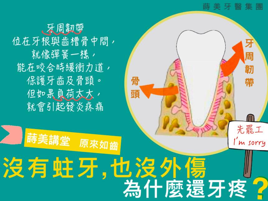 蒔美衛教文章沒有蛀牙也沒外傷,為什麼還牙疼-860x645