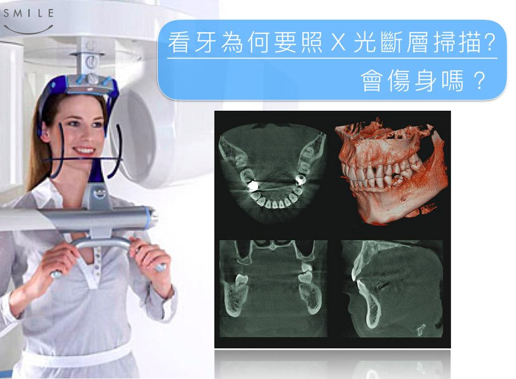 蒔美衛教文章看牙為何要照X光掃瞄會傷身嗎?