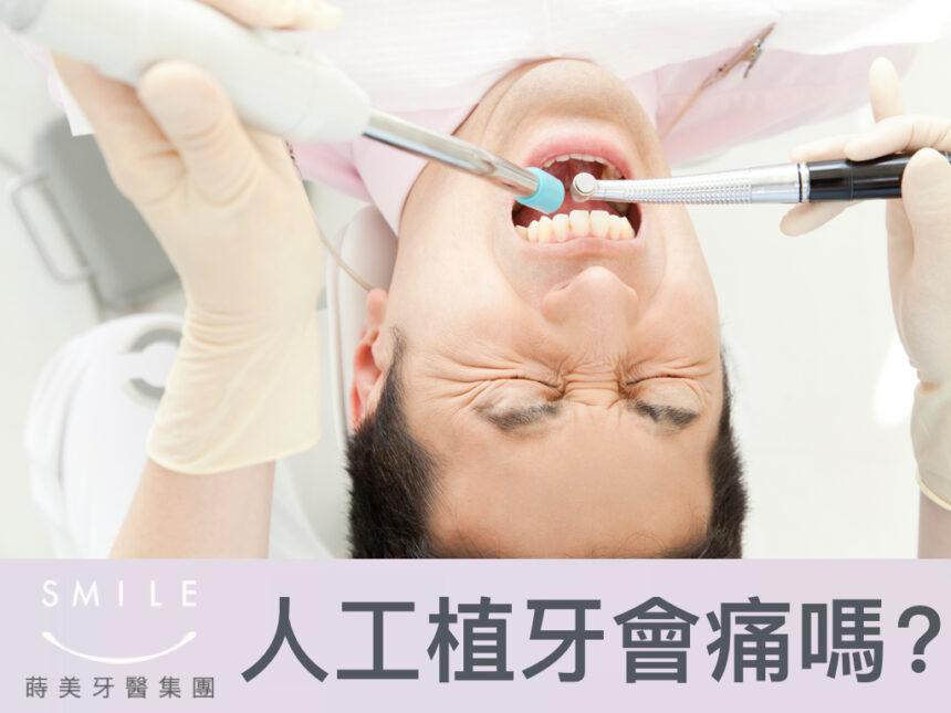 蒔美醫師專欄人工植牙會痛嗎-860x645