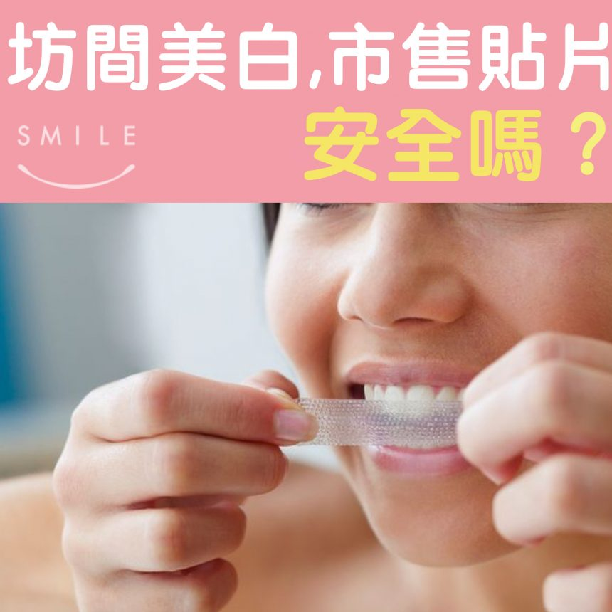 蒔美醫師專欄坊間牙齒美白市售貼片安全嗎--860x860