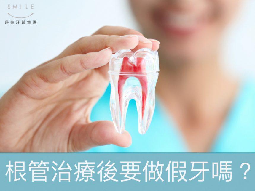 蒔美醫師專欄根管治療後一定得裝牙套嗎-1-860x645