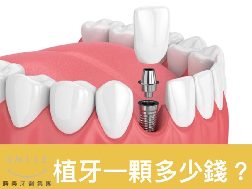 蒔美醫師專欄植牙一顆多少錢-860x645