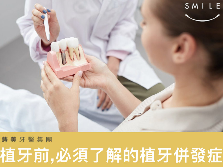 蒔美醫師專欄植牙的併發症有哪些-紀皓雲醫師-860x644
