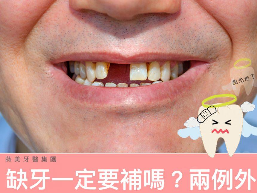 蒔美醫師專欄缺牙一定要補嗎--860x645