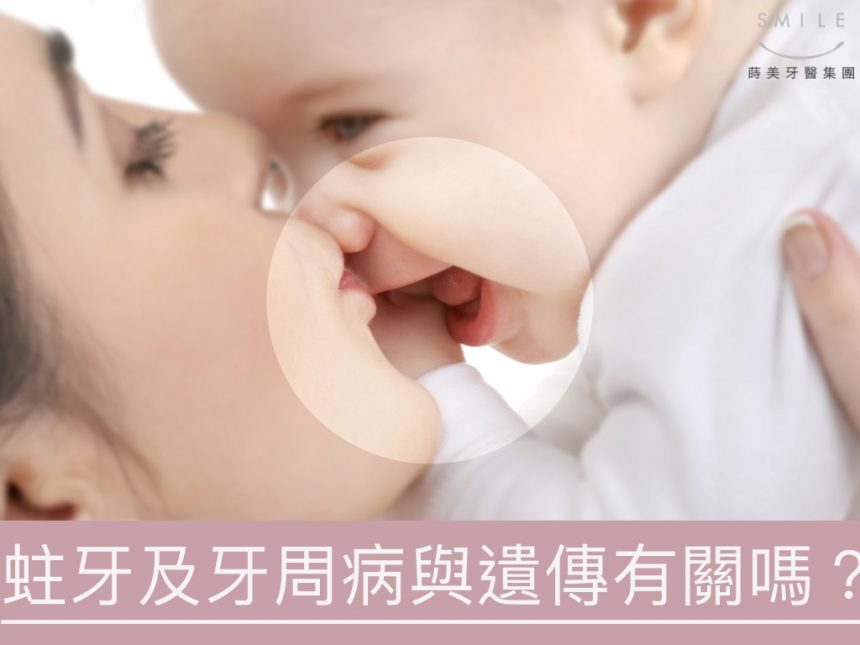 蒔美醫師專欄蛀牙與牙周病與遺傳有關嗎-860x645