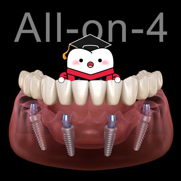 關於All-on-4一定得知道的12個問題