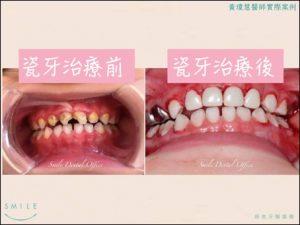 兒牙2-300x225