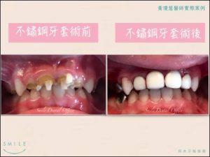 兒牙4-300x225