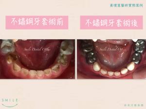 兒牙5-300x225