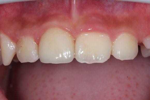 兒童前牙斷裂貼片治療-江政倫醫師-照片2-1-580x387