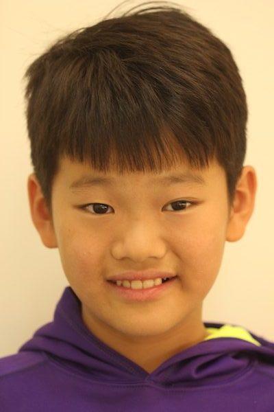 兒童前牙斷裂貼片治療-江政倫醫師-照片3-e1548787514455