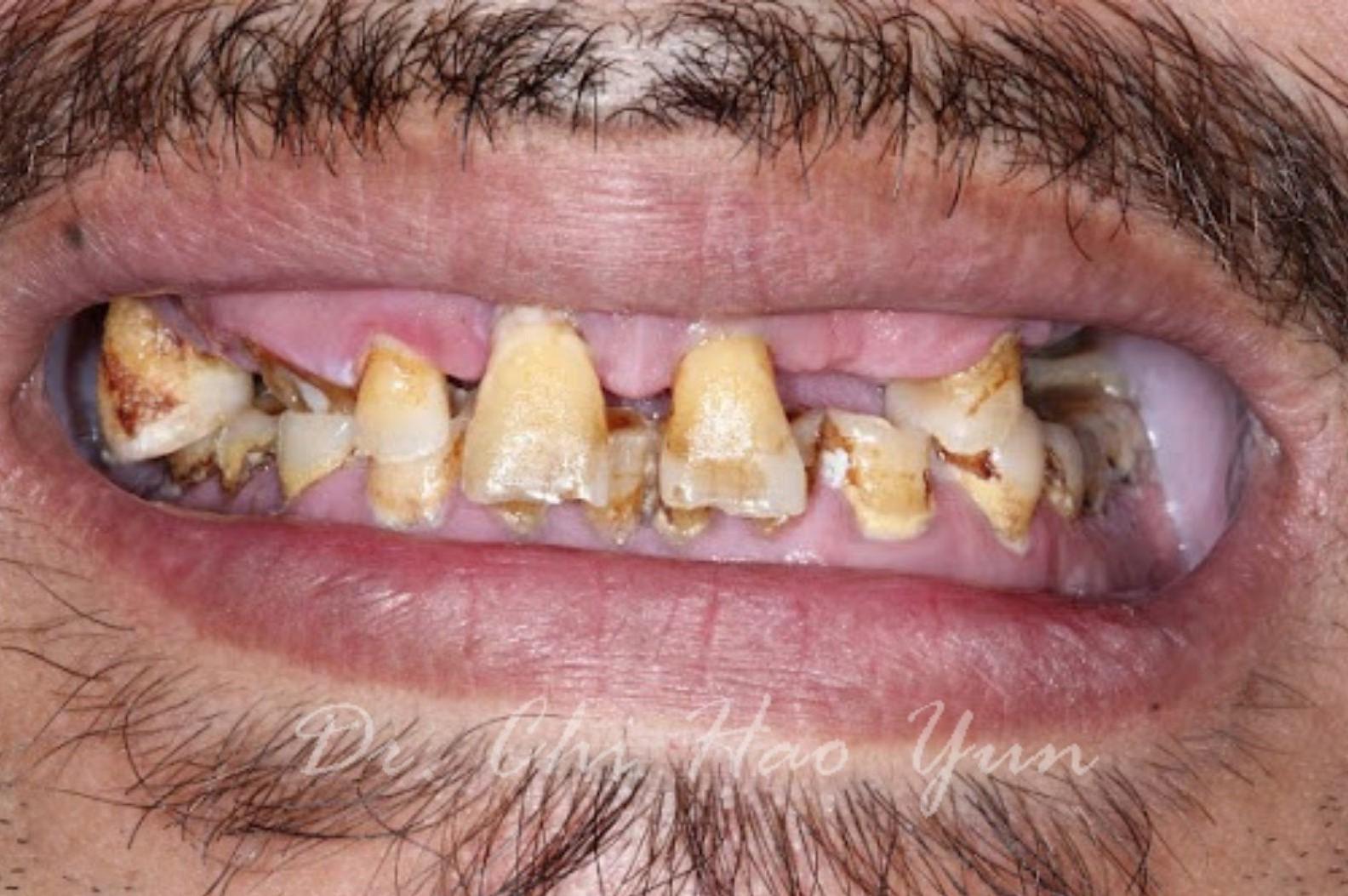 植牙重建 (1)
