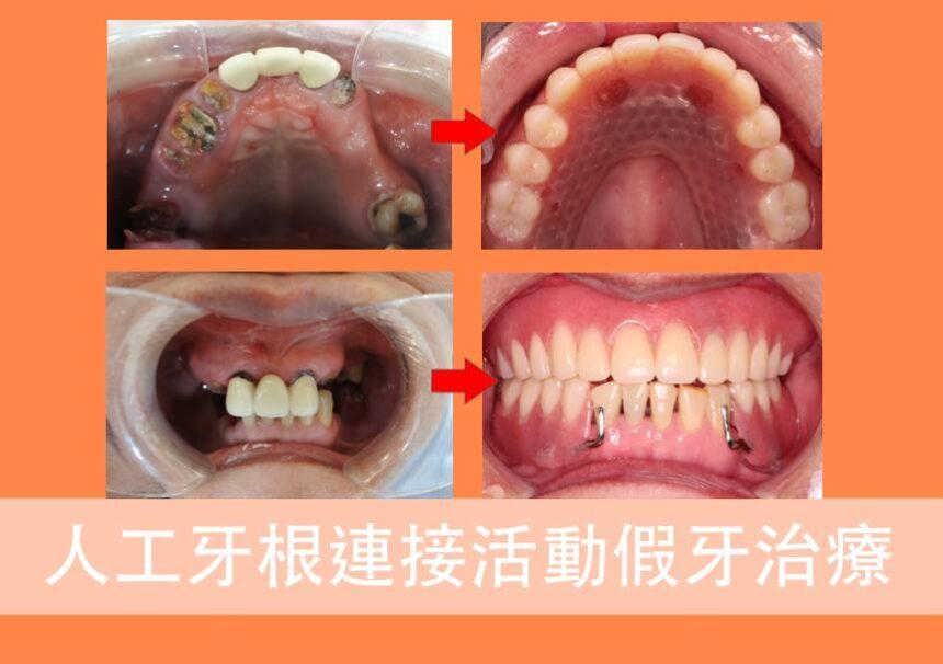 蒔美案例分享人工牙根連接活動假牙治療cover-860x606