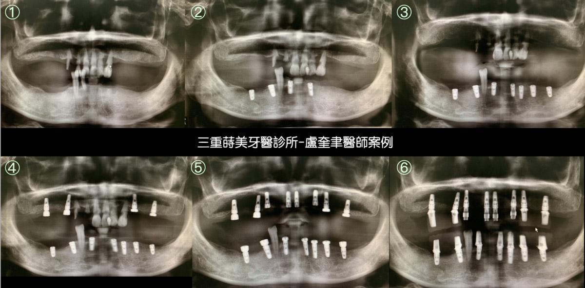 蒔美案例分享全口重建2-盧奎聿醫師2-1536x757