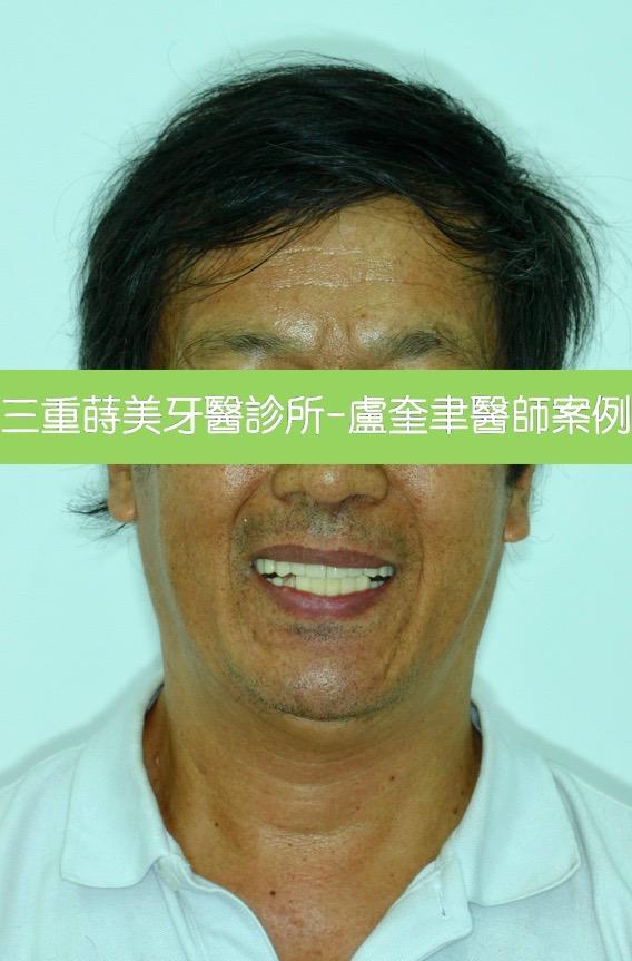 蒔美案例分享全口重建2-盧奎聿醫師3