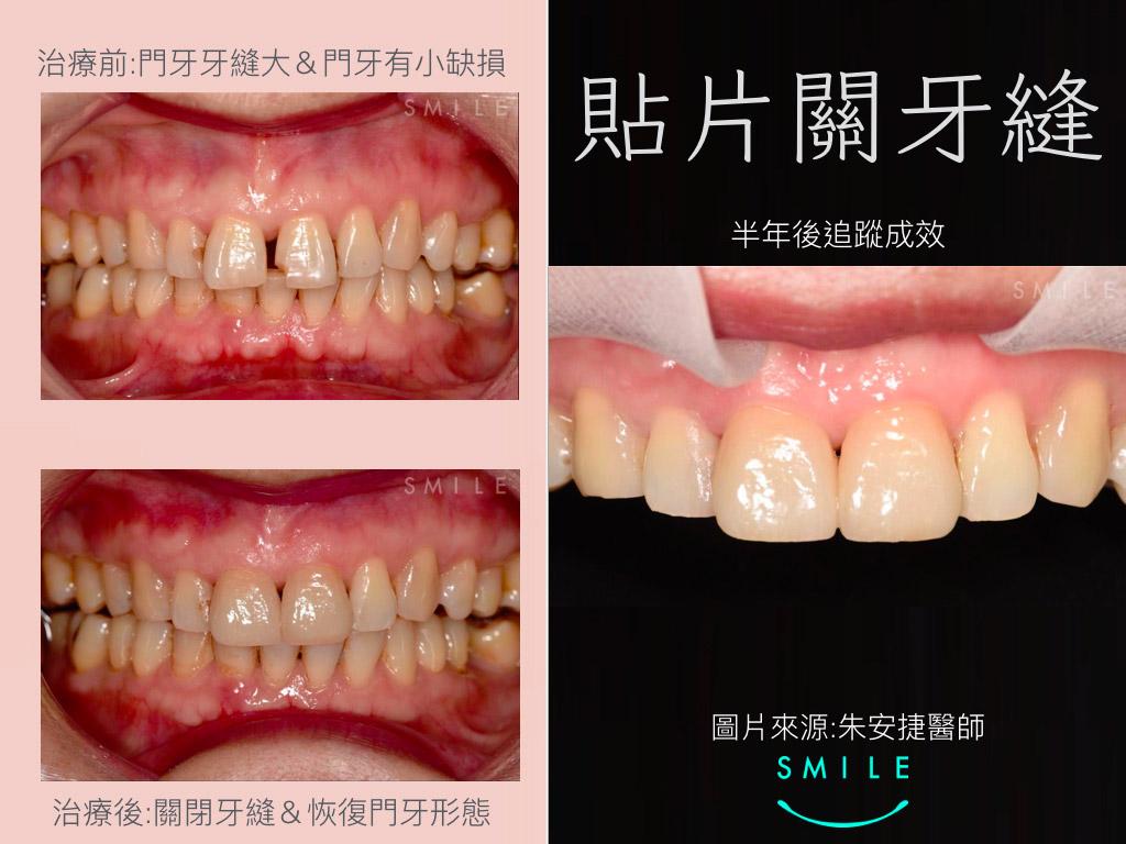蒔美案例分享貼片關牙縫
