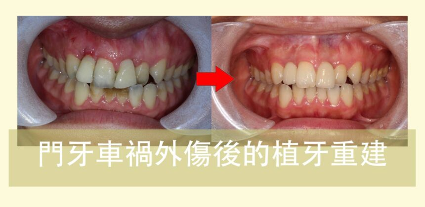 蒔美案例分享門牙車禍外傷後的植牙重建cover-860x420