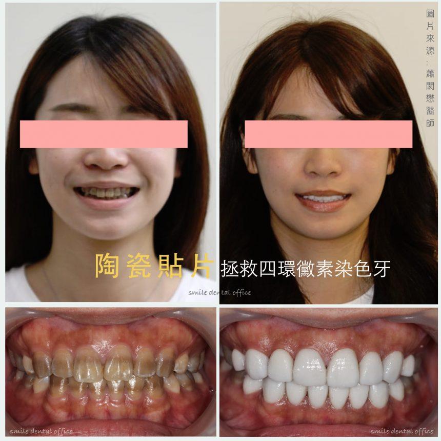 蒔美醫師案例四環黴素染色牙的重生-蕭閎懋醫師-860x860