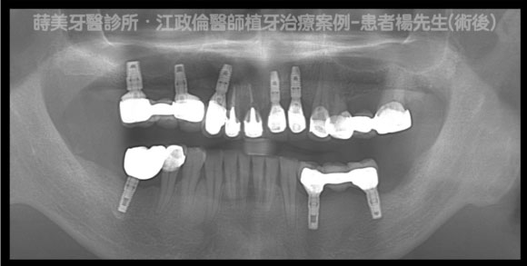 蒔美醫師案例植牙案例楊先生-A-580x293-1