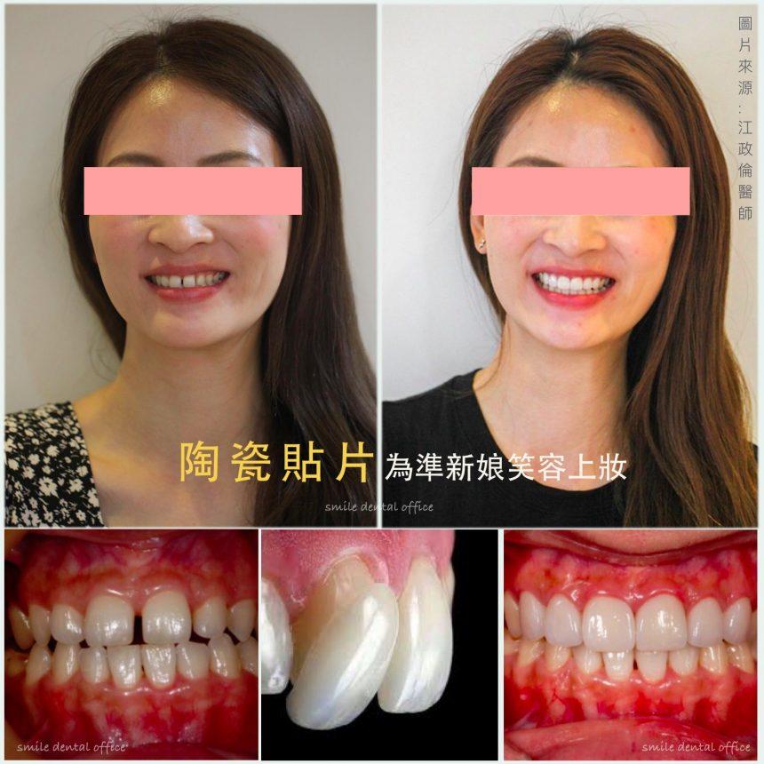 蒔美醫師案例陶瓷貼片為準新娘笑容上妝-860x860