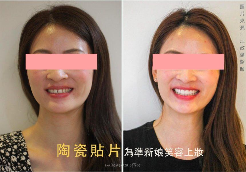 蒔美醫師案例陶瓷貼片為準新娘笑容上妝cover-860x601