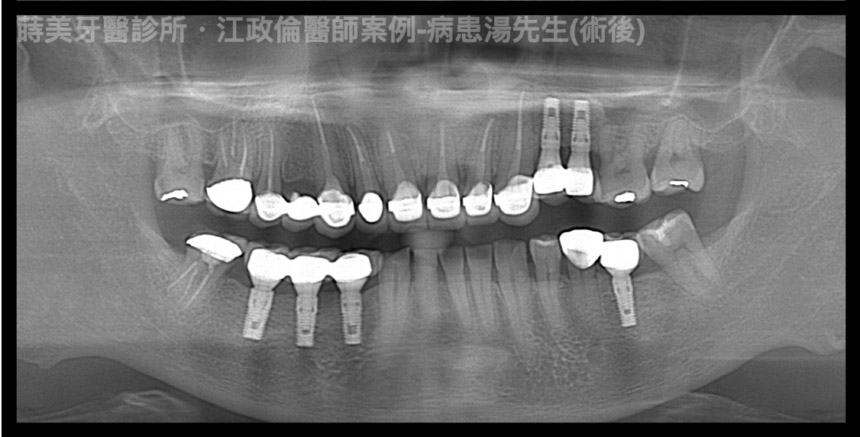 蒔美醫師案例魔鬼士官長的植牙之路2-江政倫醫師-860x437